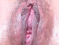 Vagina exquisita